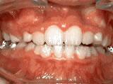 Common Orthodontic Issues
